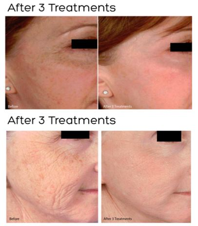 Microneedling and PRP